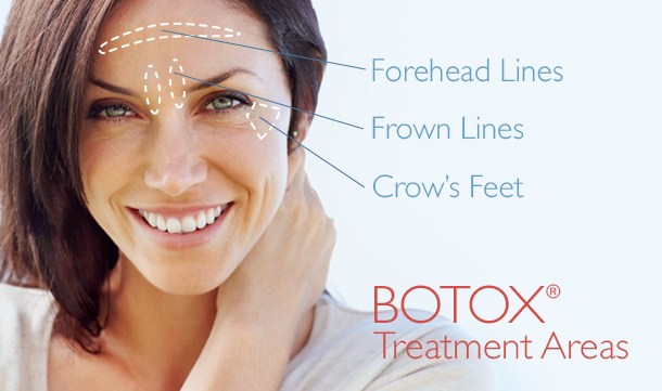 botox-feature